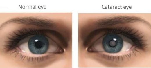 Cataract is an opacity (cloud formation) of the eye lens, develops due to aging.