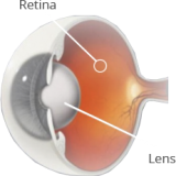 lights-and-cataract graphic