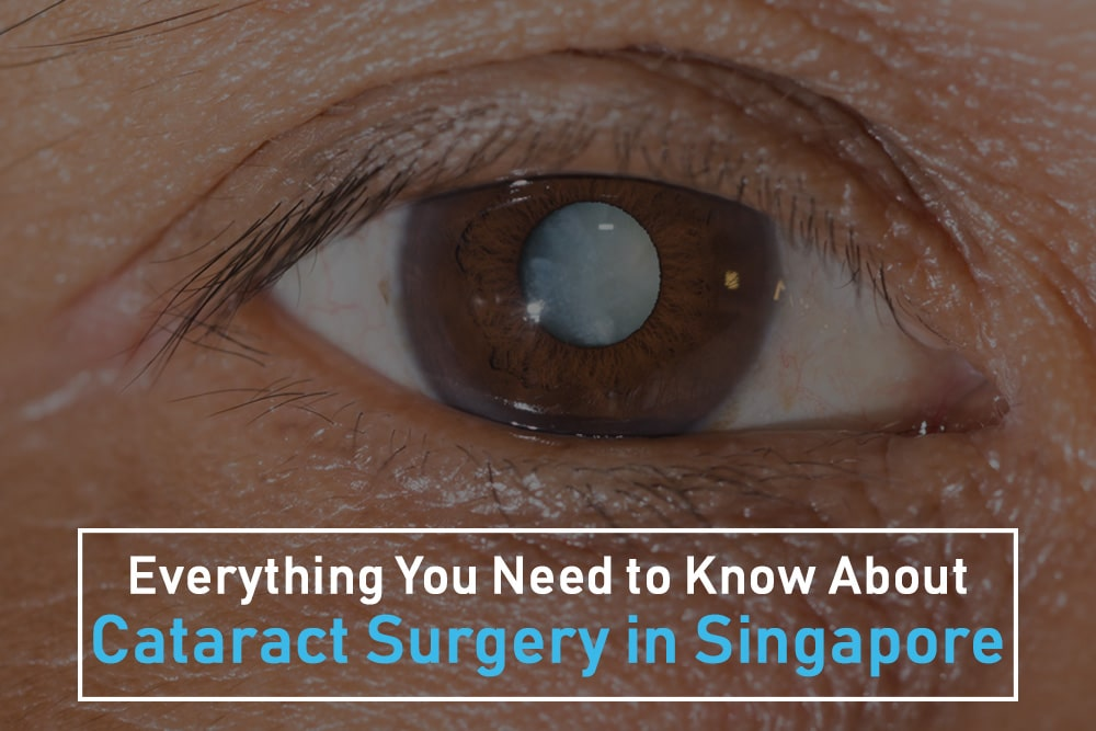 Things Cataract Surgery in Singapore
