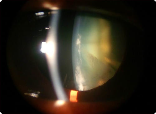 cortical-cataract-2