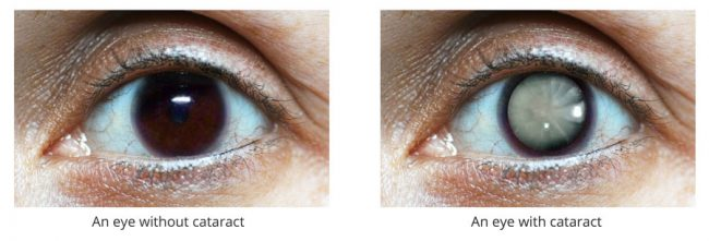 normal-eye-vs-cataract-eye3