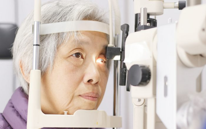 cataract assessment 2
